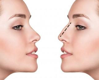 Cirurgia plástica do nariz